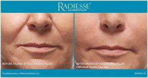 Radiesse Before After