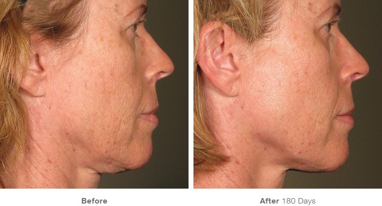 Ultherapy Jowls