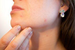 hypertrophic acne scar