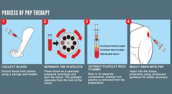 PRP Therapy process overview