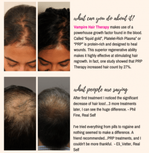scalp injections