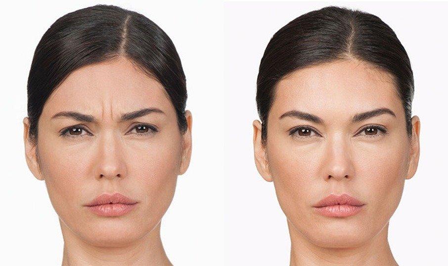 xeomin vs botox