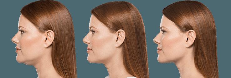kybella vs ultherapy