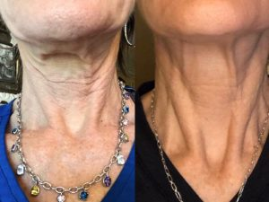 neck and chest wrinkles