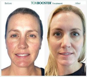toxbooster